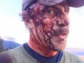 Man survives two attacks by sow grizzly bear